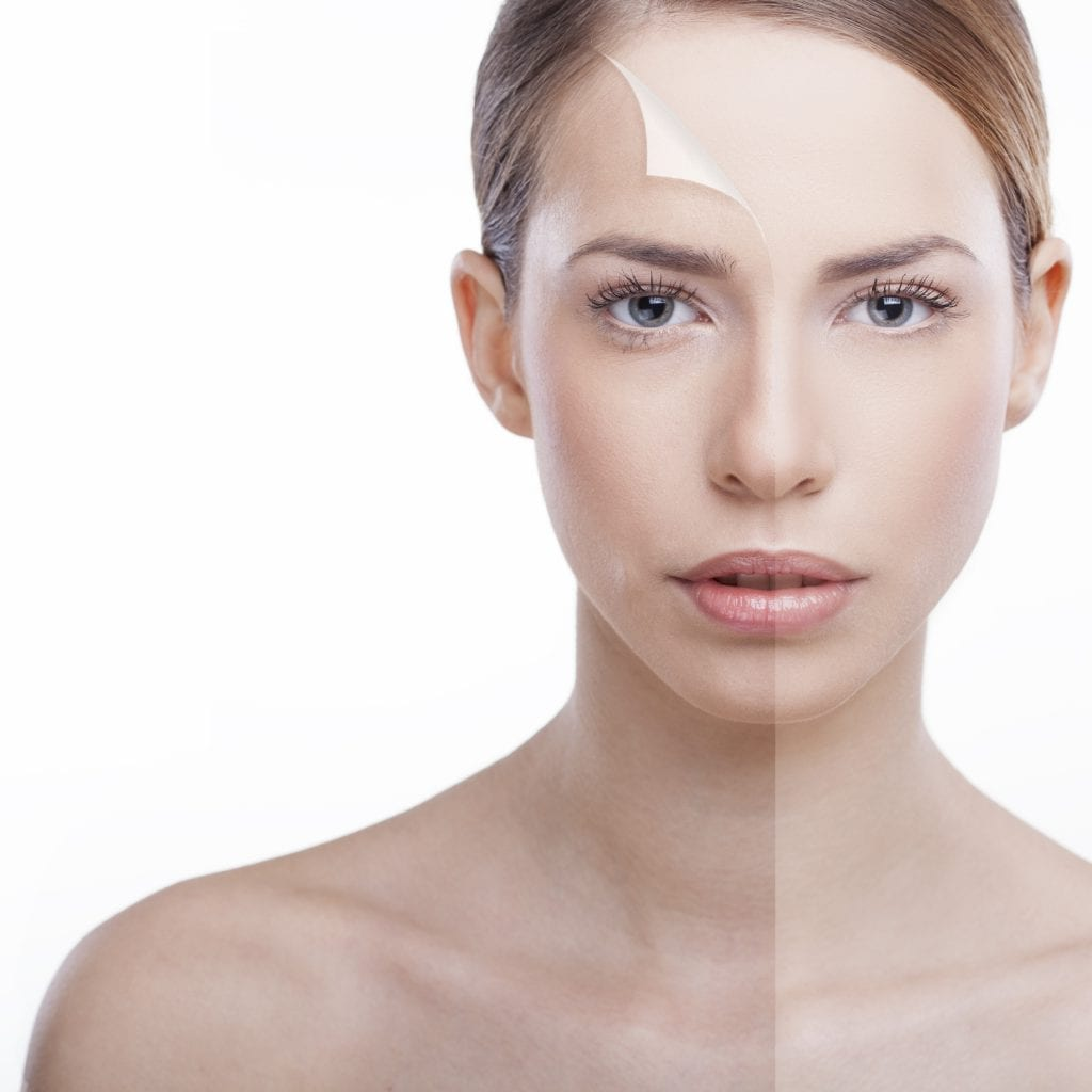Skin Before and After - iStock_000043098288_Large