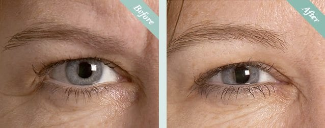 Botox Before & After 2