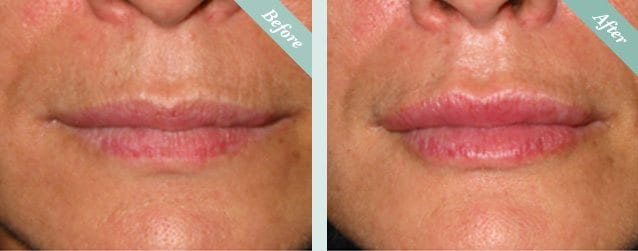 Lip Fillers Before & After 3