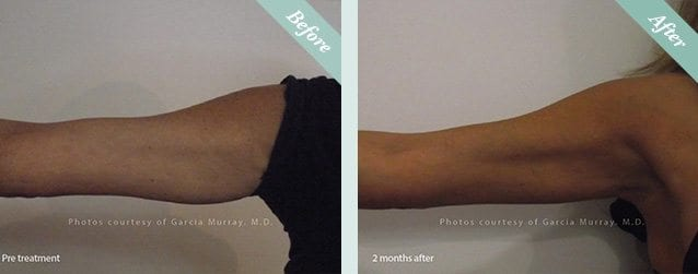 Ultracel HIFU Before & After 2