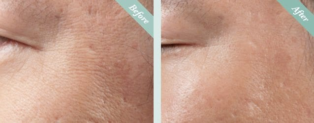 Ultracel HIFU Before & After 3