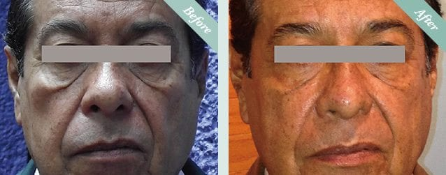 Ultracel HIFU Before & After 5