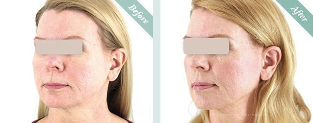 Ultracel HIFU Before & After 6