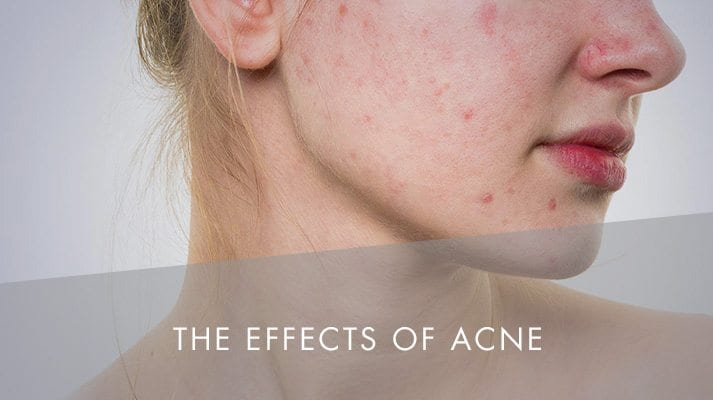 The Effects of Acne