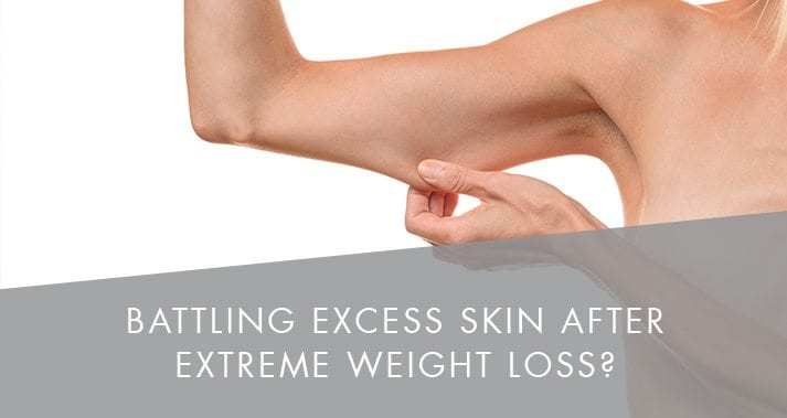 Battling Excess Skin After Extreme Weight Loss