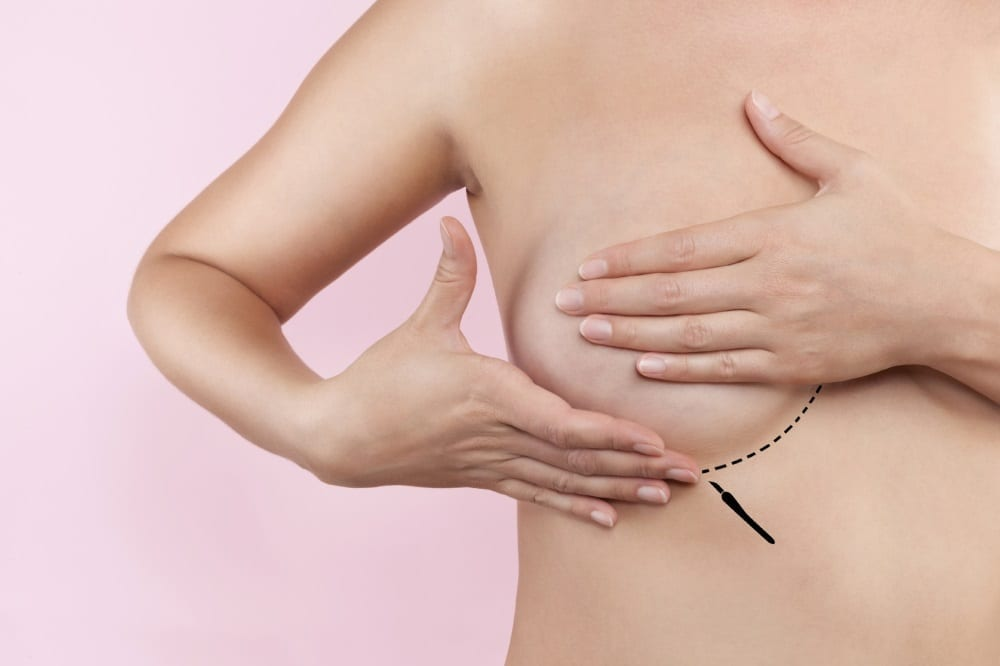 breast reduction surgery at askin clinic