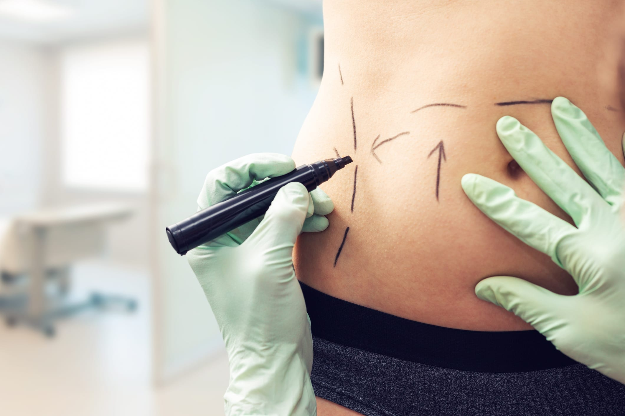 plastic surgeon marking womans body for surgery